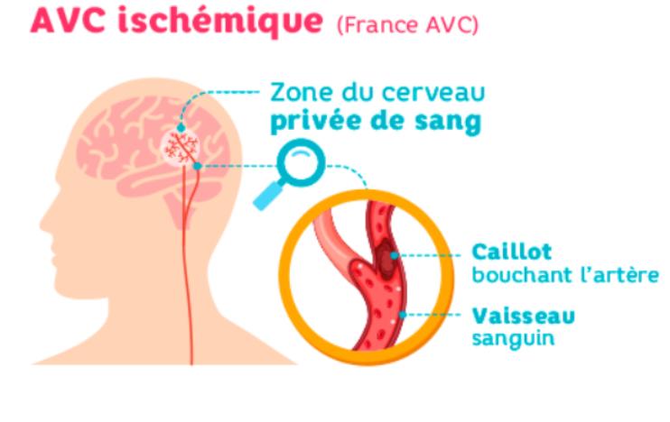 AVC ischemique